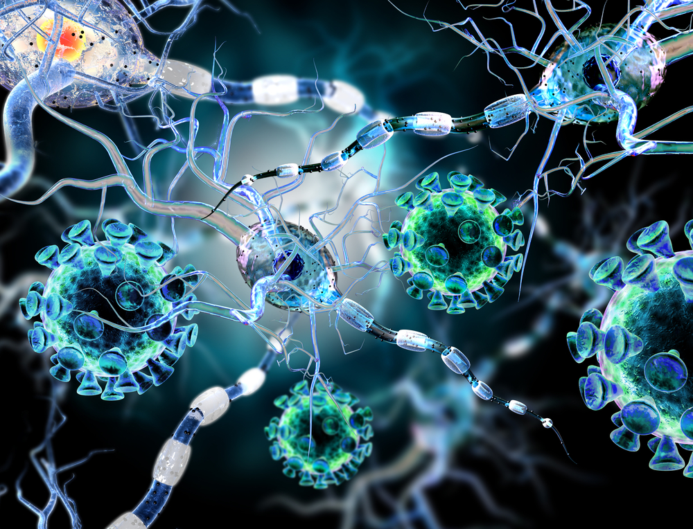 Novel Test Can Measure Effectiveness of Huntington's Disease Treatments