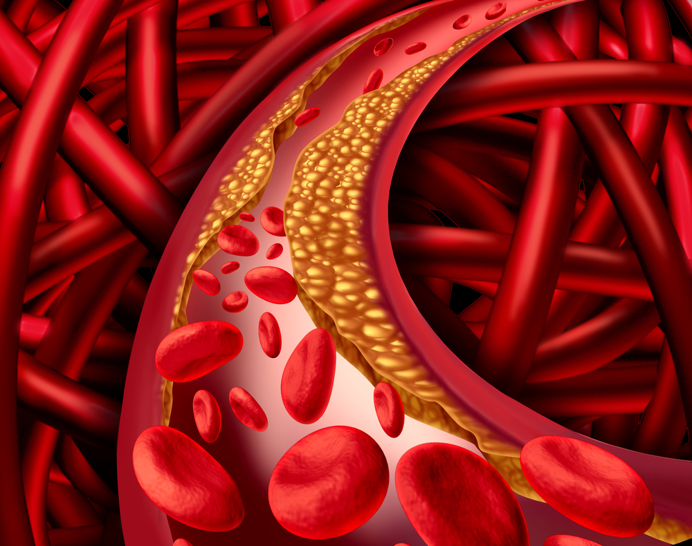 Huntington's disease and link to cholesterol metabolism
