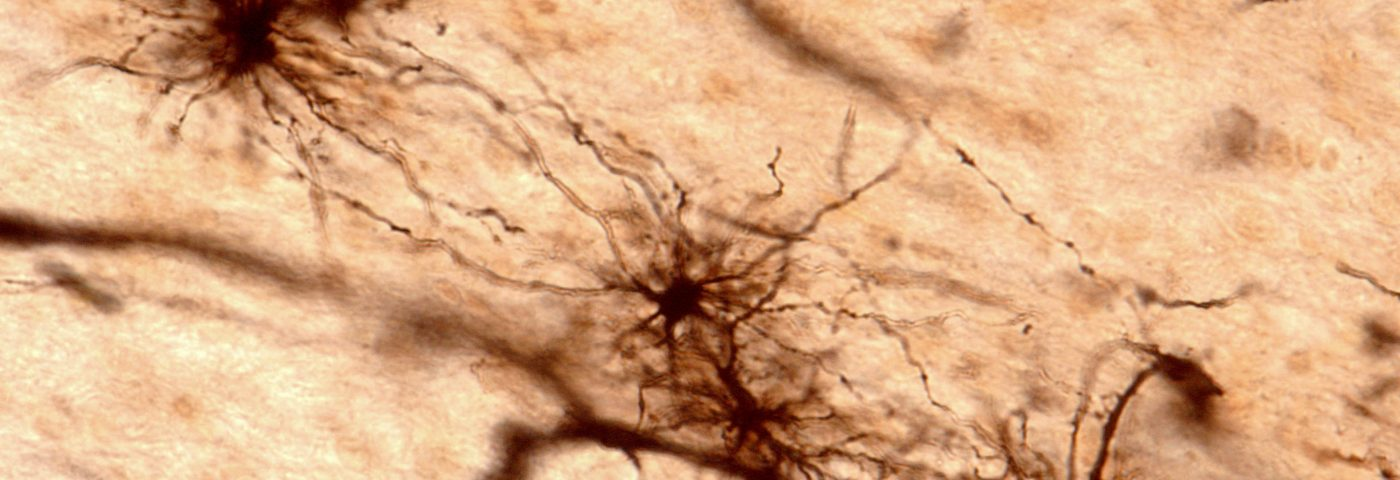 Transplants of Healthy Glial Cell Seen to Prevent Huntington Symptoms in Mice