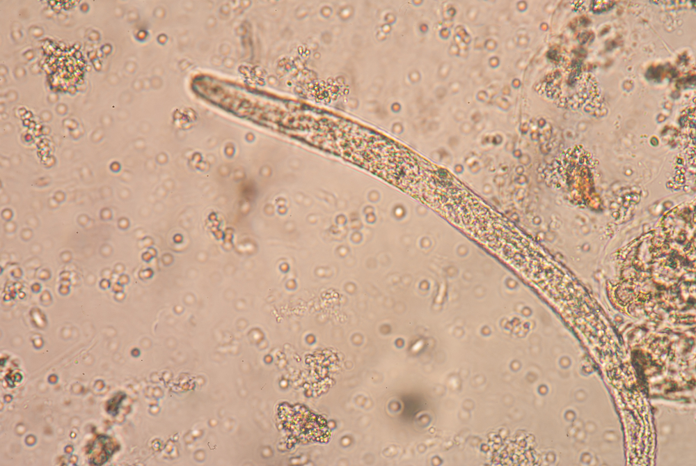 Roundworm research could reveal more about aging-related diseases.