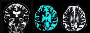 Neurodegeneration in Huntington's Linked to Protein Complex Crucial for Developing Brain
