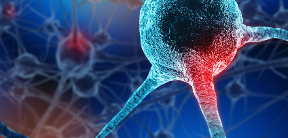 New Research Identifies Novel Type of Cell Death in Huntington's Disease