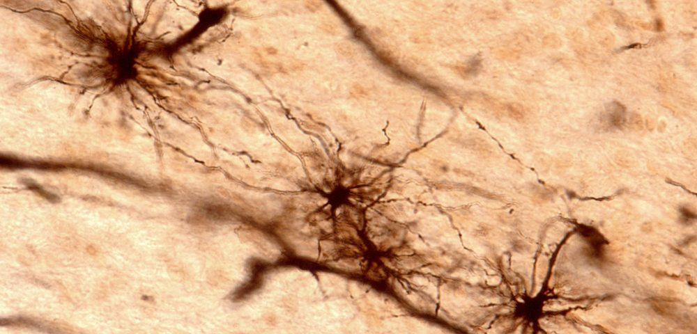 Targeting Astrocyte Brain Cells That Turn Toxic Could Help Treat Huntington's, Other Diseases