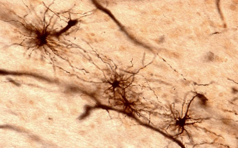 brain cells called astrocytes