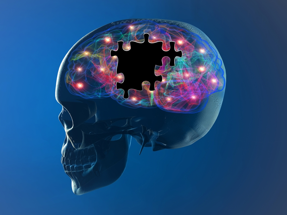 Study Suggests Differences in How Memory Is Used in People with Manifest Huntington's