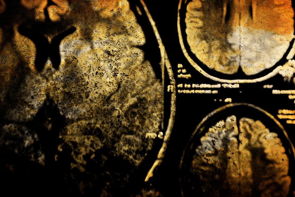 Loss of Brain Volume Linked to Symptoms Before Huntington's Diagnosis